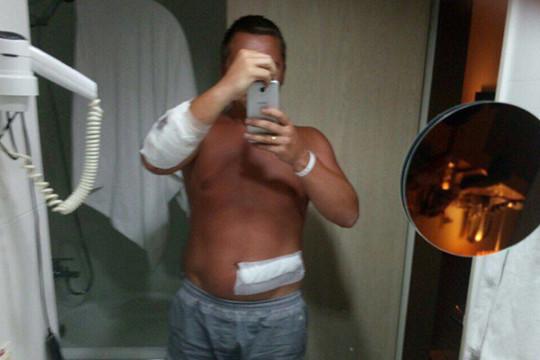 Туристы изКазани пострадали в потасовке натурецком курорте