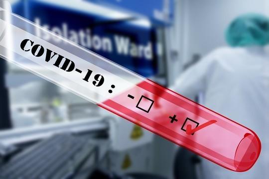ВКФУ закупили оборудования для массового изготовления тест-полосокдля определения антител против вируса