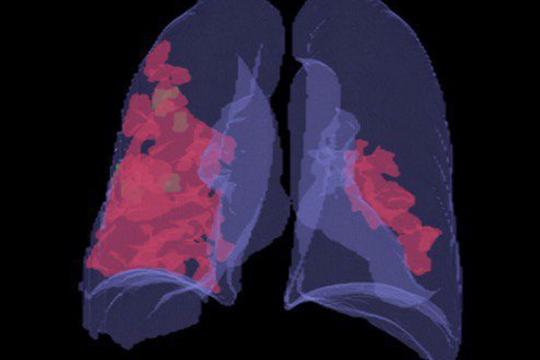 С помощью визуализации система подсвечивает врачу все очаги поражения лёгких, разными цветами выделяются различные патологии, если они есть