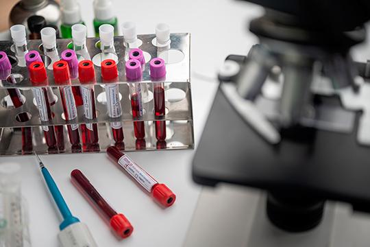 Минздрав регистрирует вакцину. Наверное, ихудовлетворили результаты первых клинических испытаний. Хотя уже настораживает то, что было повышение температуры до38 градусов