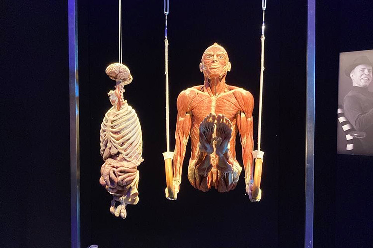 Для того, чтобы тело подвергнуть пластинации, нужно остановить процесс разложения