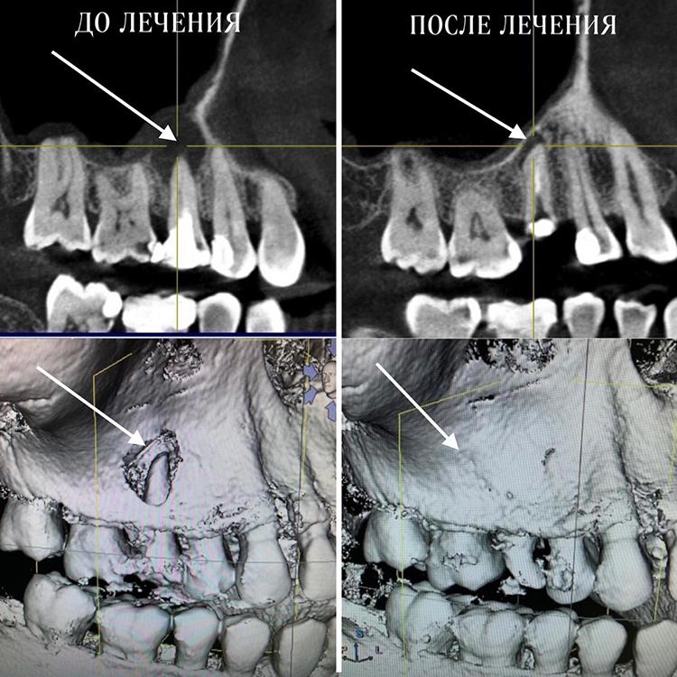 «Даже если зуб разрушен дооснования десны— онвсе равно может послужить плацдармом для восстановления кости, поэтому некоторые плохие зубы мыиспользуем для сохранения ивосстановления окружающих тканей, апотом удаляем»