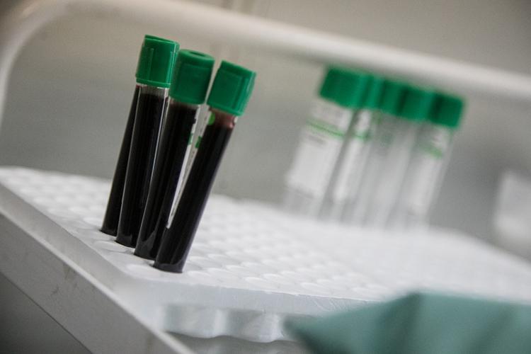 «Если увас антител через крышу, то,может быть, иненадо прививаться. Ноникто незнает, сколько антител нужно»