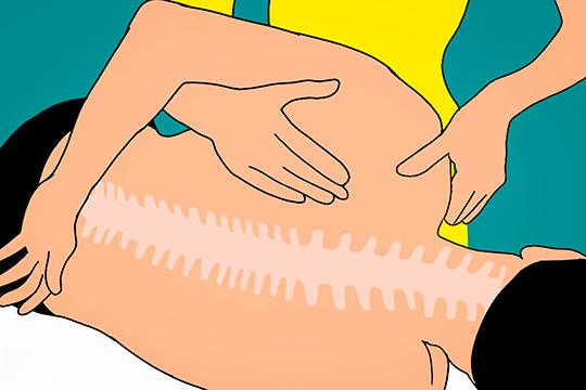 Остеоартроз – это хроническое заболевание сустава, в результате которого разрушается суставной хрящ, образуются остеофиты (костные наросты) и появляется боль