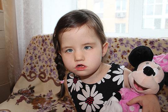 Маленькой Алсу из Казани с синдромом Мебиуса поможет операция, но стоит она очень дорого — более миллиона рублей