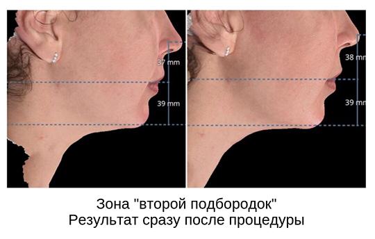 «Процедура запускает процесс липолиза — расщепления и вывода жиров. Сразу после процедуры объем обработанных зон заметно уменьшается. Жир как бы растекается, становится менее плотным»