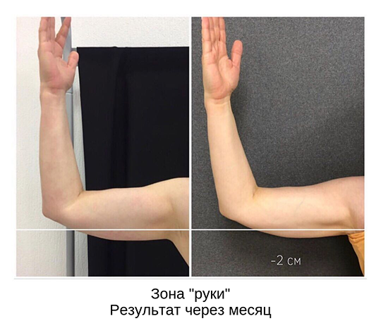 «Аппарат для ультразвукового воздействия на подкожный жир имеет регистрацию на территории России, так же методика одобрена FDA — Управлением по контролю за качеством пищевых продуктов и лекарственных препаратов в США»